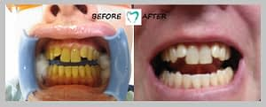 TEETH WHITENING RESULT - 04