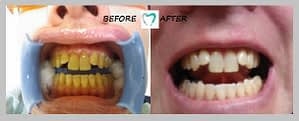teeth whitening result 01