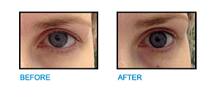 Brow-Lift-Dublin-Before-and-After-photo