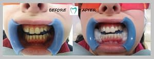 TEETH WHITENING RESULT - 02