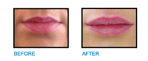 Lip-Fillers-Dublin-Before-and-After-photo