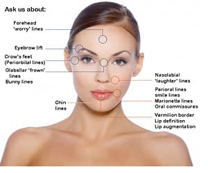 areas - botox fillers