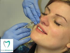 Lip Filler Dublin - treatment 1