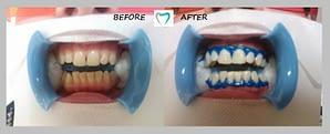 teeth whitening - result 02