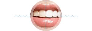 teeth-whitening-results