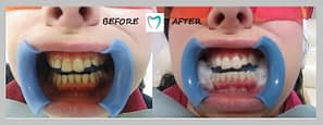 teeth whitening Dublin - photo example