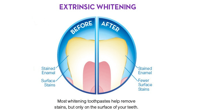 Tooth Whitening Toothpaste – does it work?