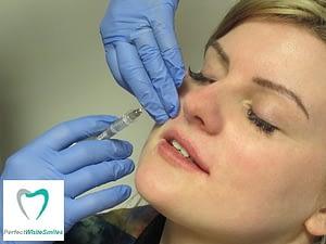 Lip Filler Dublin - treatment 2